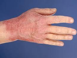 allergisch contacteczeem
