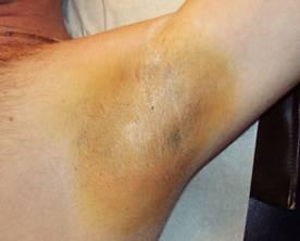 zweetproef na Botox, de huid is vrijwel geheel droog
